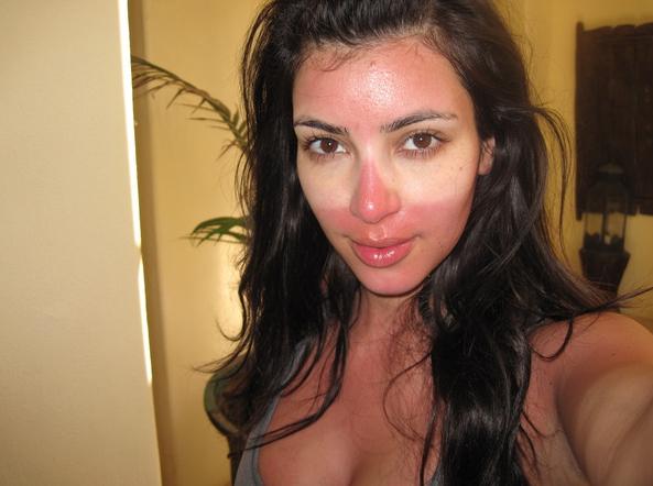 kim-kardashian-gets-burnt